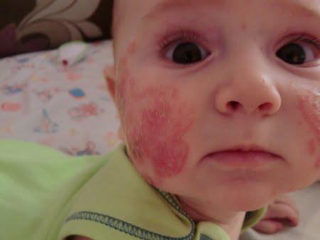 Реакция на прививку против паротита